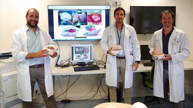 El Hospital Virgen del Rocío imprime cerebros en 3D para operar tumores complejos con total seguridad